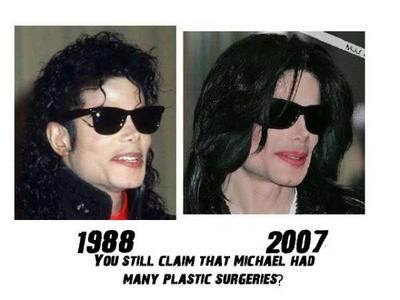 Michael Jackson Didn't have all the surgeory people berkata he did?