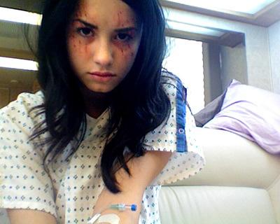 demi lovato cuts. Demi lovato cuts herself