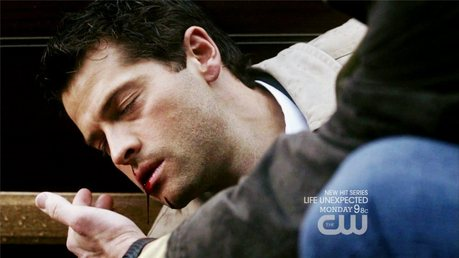 I like this pic. Not that I like seeing Cas hurt au anything it's just I think he looks so cute here.
