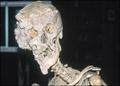 Joseph's skull