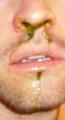 Misha's boogers!