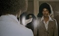 MJ and vitiligo - michael-jackson photo