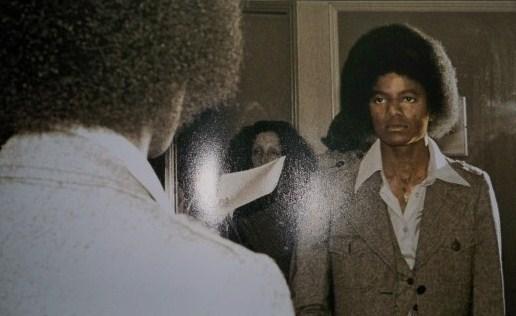 MJ and vitiligo