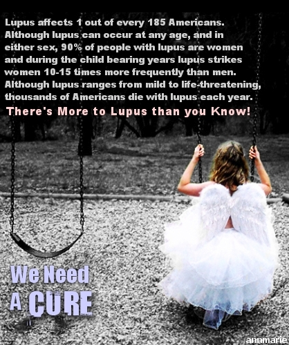 Lupus Affects Everyone