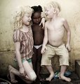 albino kids. it has much meaning.