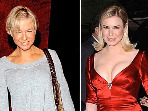 Renée Zellweger without breast and big breast