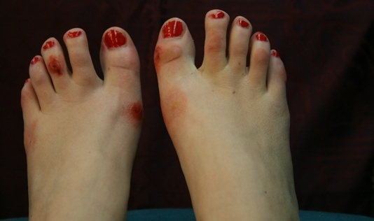 dancers feet ugly Ballet
