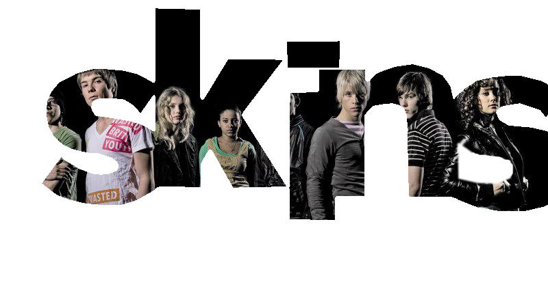 SKINS cast