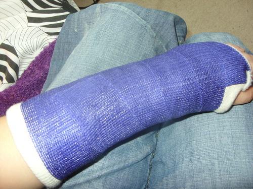 em em's casterific arm.