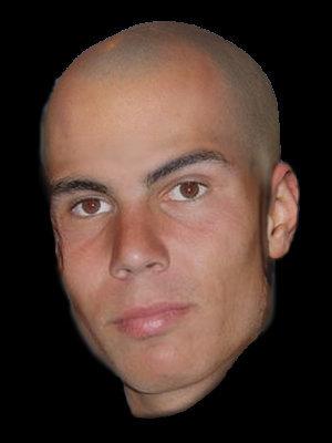 Rafa bald