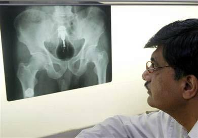 15 Bizzare X-Rays