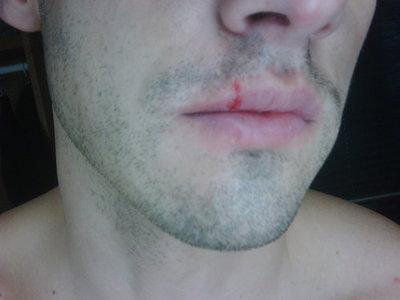 MV teilt, split lip