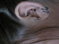 orbital lobe 2 conch