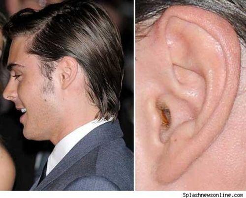 zac efron's EAR WACK'S! EEEEEEEEEEEEEW!!!!!