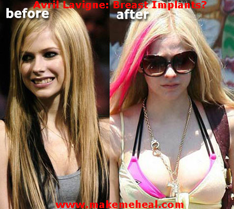 before and after avril