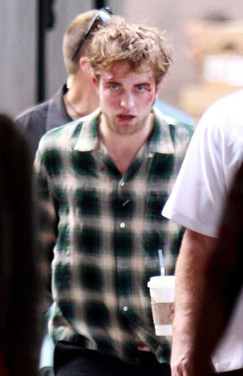 Rob battered and bruised