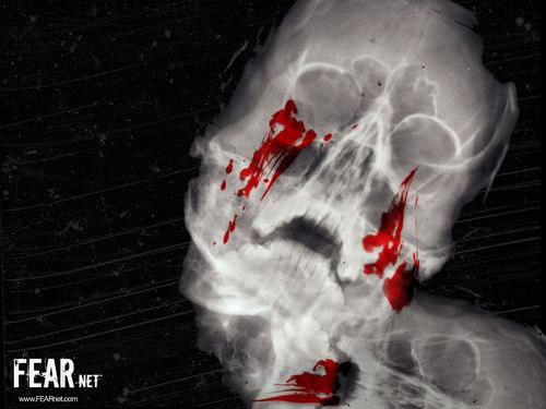 Xray Bleeding Skull