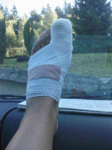 My bandaged foot