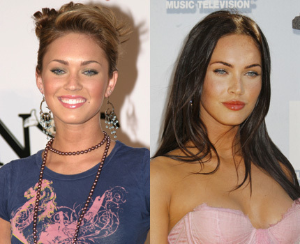 megan fox before surgery and after. megan fox surgery before after