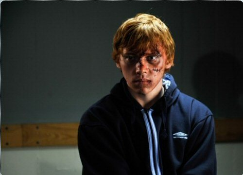 Rupert (Cherrybomb)