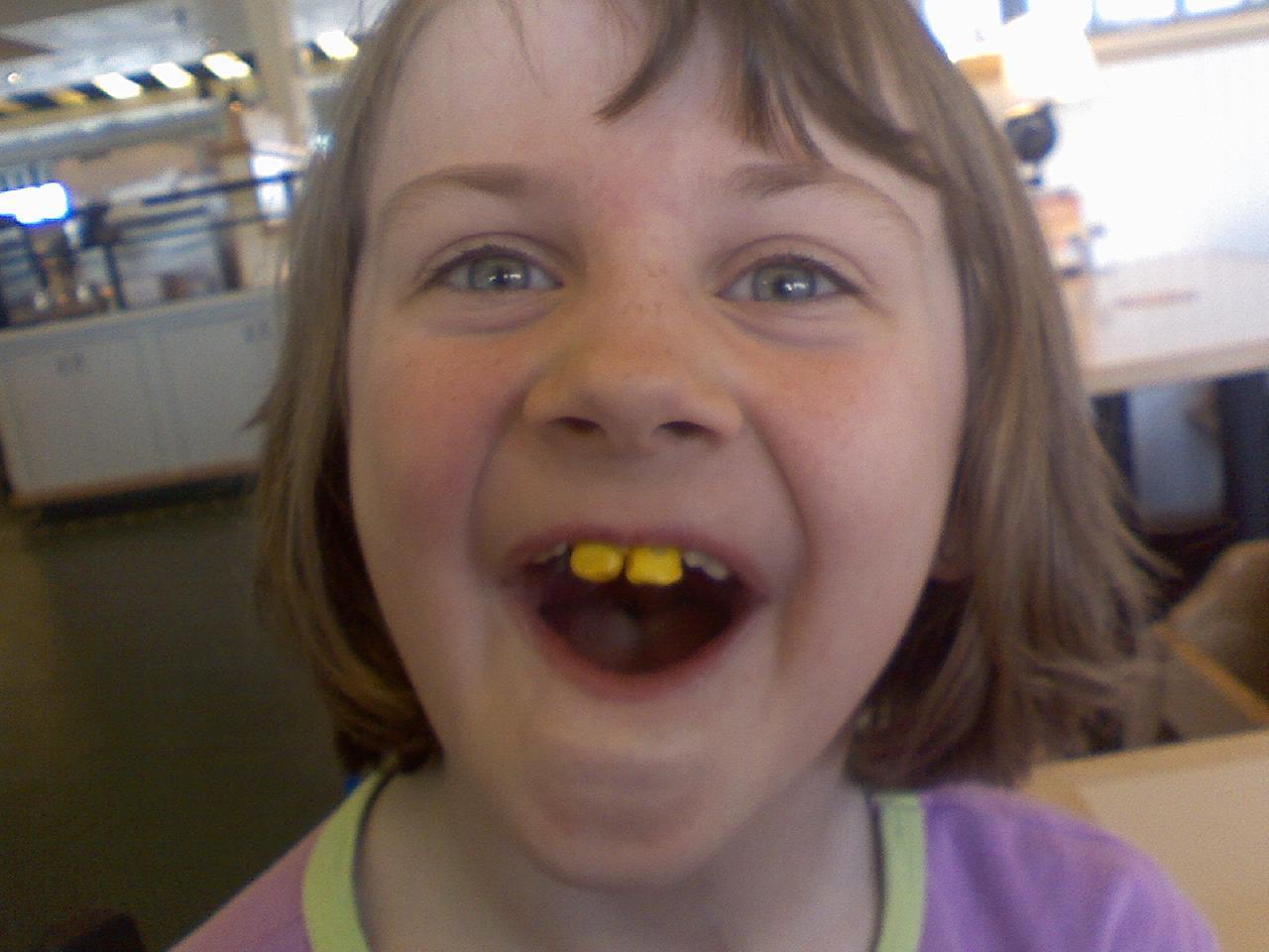Yellow Teeth Girl Your Teeth Are Yellow