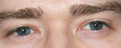 who's eyes are these?