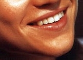 Whose smile is this?