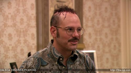 How many hair plugs did Tobias get?
