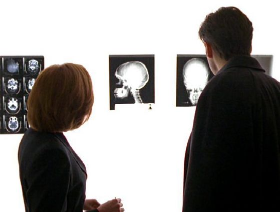 Season Four Memento Mori # ~ Scully Tells Mulder She Has Cancer , He Wont Accept It