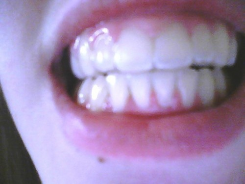 My Sexy Teeth XDDD